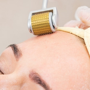 Derma roller Therapy